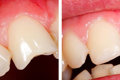 Før- og etterbilde av plastfylling på ødelagt tann