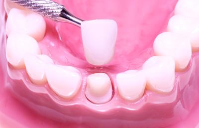 Modell av kjeve hvor tann blir utstyrt med krone.